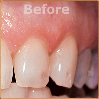 Beverly Hills Dentist Tooth Fillings